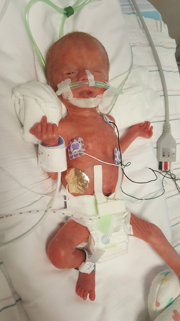 Days After I Had My Preemie Shes Doing Great Now Was Pissed About