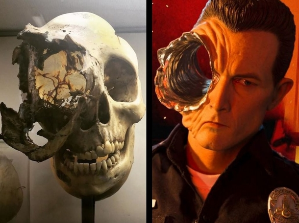 That Skull Deformation Posted To Rcreepy The Other Day Reminded Me
