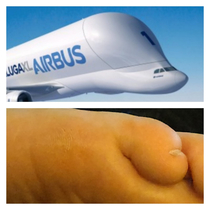 According to my partner my toe and the plane have a striking resemblance