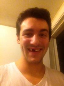 Got my teeth knocked out by some asshole who was possibly playing the knock out game I decided to make the best of the situation and post on reddit