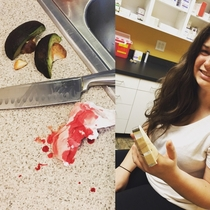 I see your girlfriends avocado cutting skills I raise you MY girlfriends avocado cutting skills