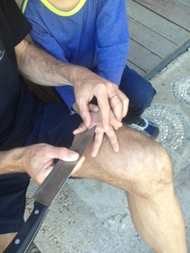 My dad a safety engineer taking a splinter out my little brothers hand the safest way possible