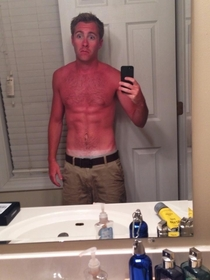 My friend should probably invest in sunscreen