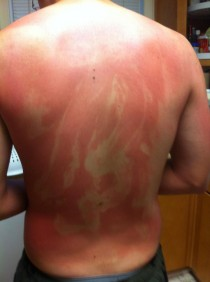 My husband just got back from a drunken camping trip with his friends This is why you dont let drunk friends apply your sunscreen
