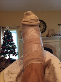 My mom was mad at me for laughing after her foot surgery