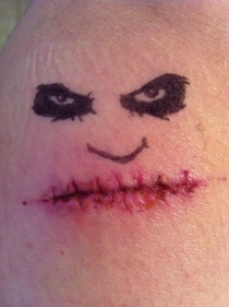 Recently had my stitches removed I couldnt resist