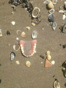 Someone didnt have a good day at the beach Theres a whole funny story behind these teeth I just know it amp its killin me