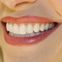 The Brits are asleep Post pictures of nice teeth